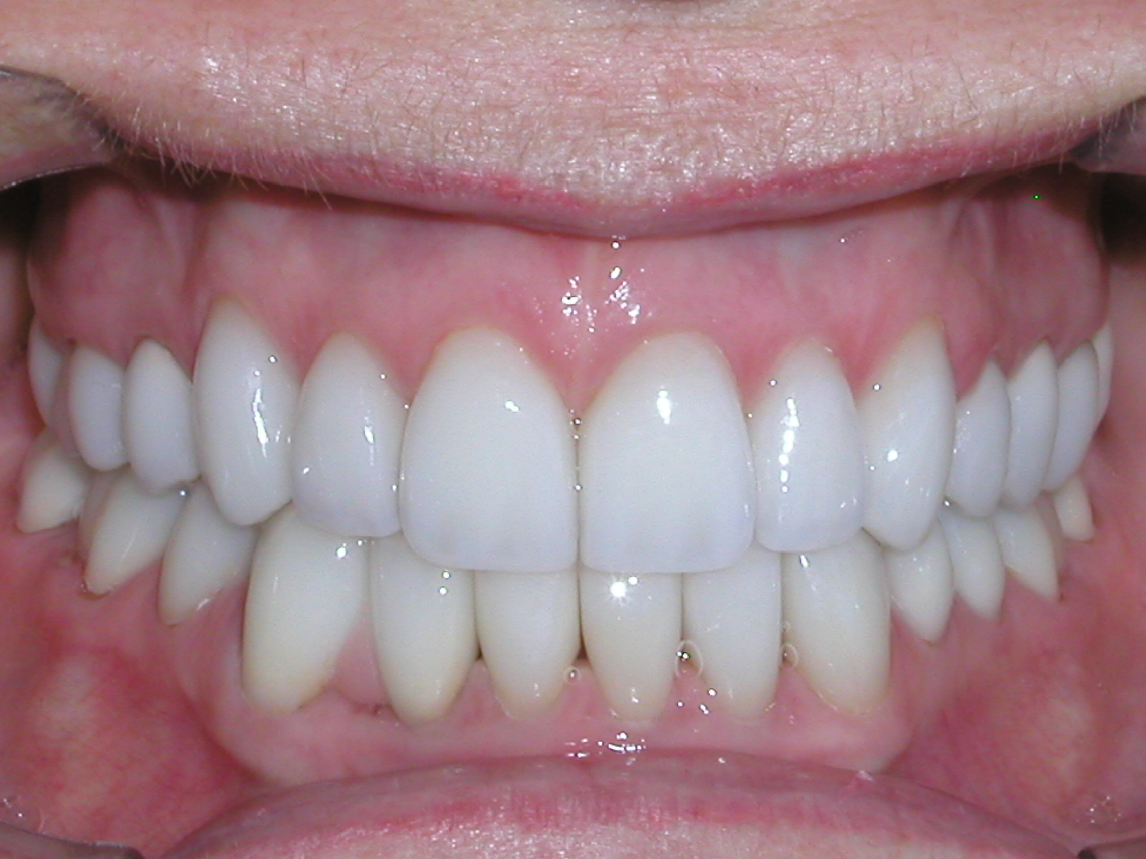After-Full Mouth Reconstruction