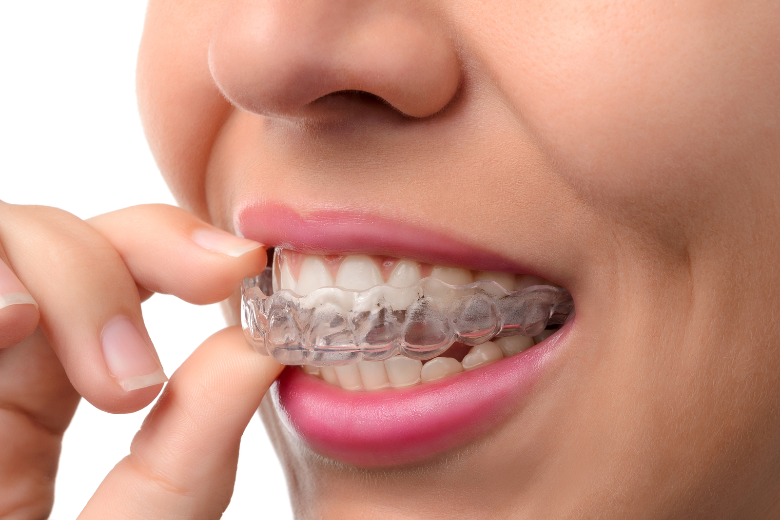 woman wearing orthodontics